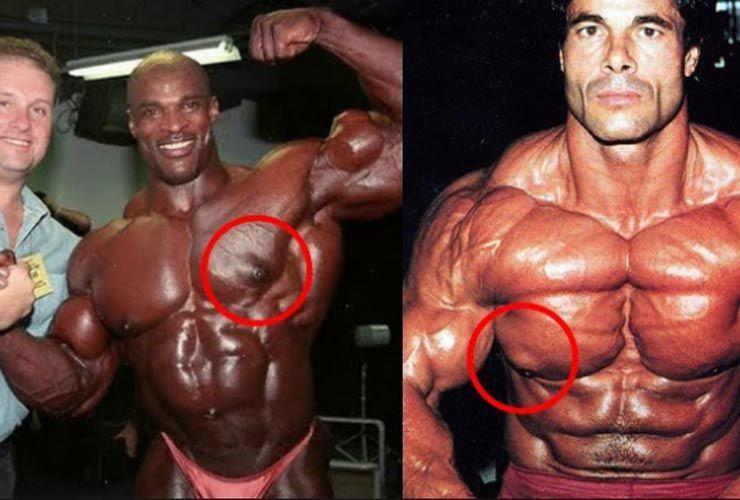 Diferents exercicis al pit no reduiran la ginecomàstia ni els pits de l'home